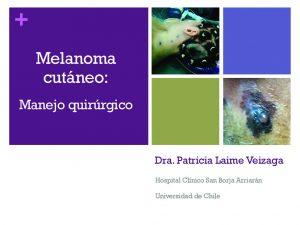 thumbnail of Manejo Melanoma Dra. Laime